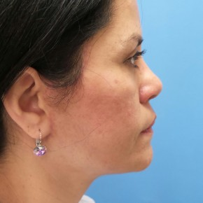 After Photo - Facelift - Case #18725 - 54-year old - Upper & Lower Blepharoplasty/Facelift/Fat Grafting  to  Upper Cheeks & Lower Lids/Skin Resurfacing to both cheeks   3 months post-op - Lateral View