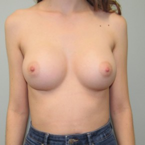 After Photo - Breast Augmentation - Case #18729 - Breast Augmentation in 22 year-old - Frontal View