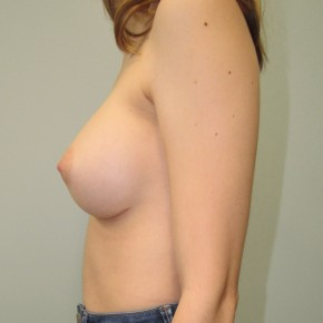 After Photo - Breast Augmentation - Case #18729 - Breast Augmentation in 22 year-old - Oblique View