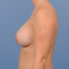 After Photo - Breast Augmentation - Case #18739 - Breast Augmentation in 27 year-old - Lateral View