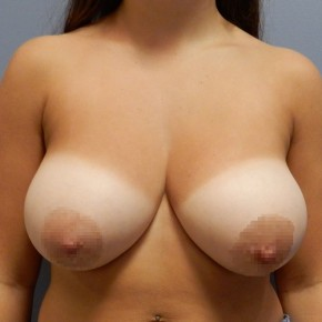 Before Photo - Breast Lift - Case #18746 - Mastopexy - Frontal View