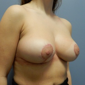 After Photo - Breast Lift - Case #18746 - Mastopexy - Oblique View