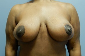 After Photo - Breast Lift - Case #18756 - Mastopexy - Frontal View