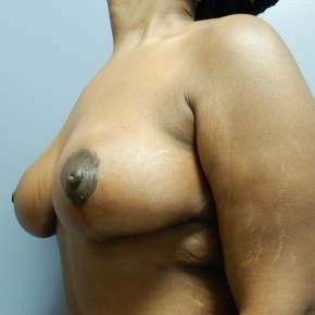 After Photo - Breast Lift - Case #18756 - Mastopexy - Oblique View