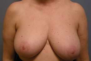 Before Photo - Breast Reduction - Case #18800 - Reduction Mammoplasty - Frontal View
