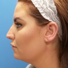 Before Photo - Nose Surgery - Case #18823 - 27 year-old  -  Rhinoplasty/Septoplasty/Turbinectomy/Liposuction to Neck  -  2 months post-op - Lateral View