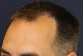 Before Photo - Hair Transplantation - Case #18851 - Hair Transplantation San Diego - Lateral View