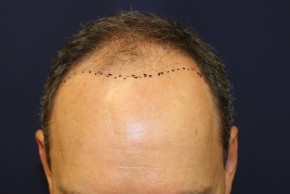 Before Photo - Hair Transplantation - Case #18852 - Hair Transplantation San Diego - Frontal View
