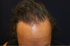 After Photo - Hair Transplantation - Case #18852 - Hair Transplantation San Diego - Frontal View