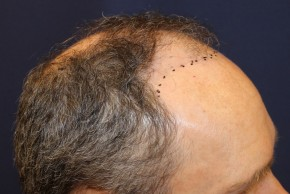 Before Photo - Hair Transplantation - Case #18852 - Hair Transplantation San Diego - Oblique View