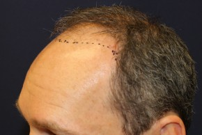 Before Photo - Hair Transplantation - Case #18852 - Hair Transplantation San Diego - Lateral View