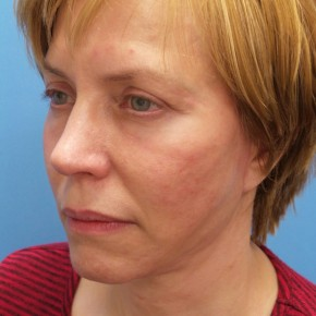 After Photo - Facelift - Case #18861 - 54-year old  -  Facelift/Upper Blepharoplasty/Lower Lid Fat Grafting & TCA Peel   3-months post-op - Oblique View