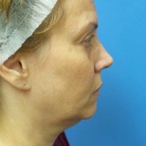 Before Photo - Facelift - Case #18861 - 54-year old  -  Facelift/Upper Blepharoplasty/Lower Lid Fat Grafting & TCA Peel   3-months post-op - Lateral View