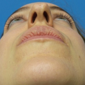 Before Photo - Nose Surgery - Case #18865 - 31 year-old  -  Open Rhinoplasty/Endoscopic Browlift  -  3 months post-op - Worm's Eye View