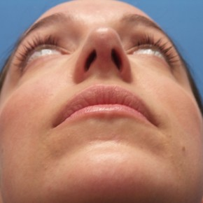 After Photo - Nose Surgery - Case #18865 - 31 year-old  -  Open Rhinoplasty/Endoscopic Browlift  -  3 months post-op - Worm's Eye View