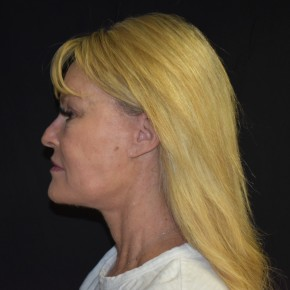 After Photo - Facelift - Case #18972 - 57 year old female treated for aging face and neck - Lateral View