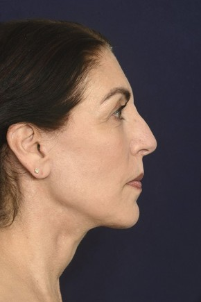 After Photo - Facial Rejuvenation - Case #18980 - Full Facial Rejuvenation - Lateral View