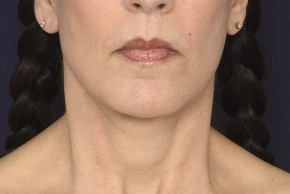 After Photo - Neck Lift - Case #18981 - Lower Facial Rejuvenation  - Frontal View