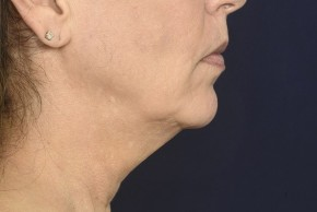 Before Photo - Neck Lift - Case #18981 - Lower Facial Rejuvenation  - Lateral View