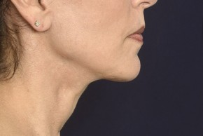 After Photo - Neck Lift - Case #18981 - Lower Facial Rejuvenation  - Lateral View