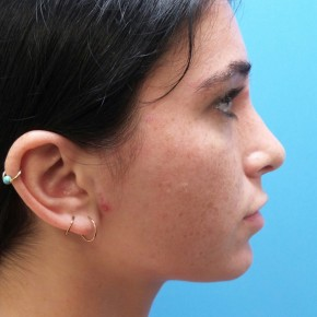 After Photo - Nose Surgery - Case #18983 - 21 year old  -  Rhinoplasty  -  6 months post-op - Lateral View