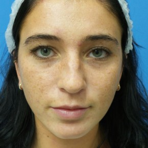 Before Photo - Nose Surgery - Case #18983 - 21 year old  -  Rhinoplasty  -  6 months post-op - Frontal View