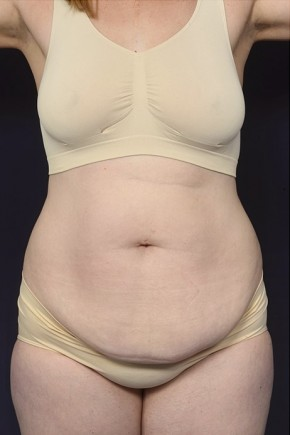 Before Photo - Tummy Tuck - Case #18985 - Abdominoplasty - Frontal View