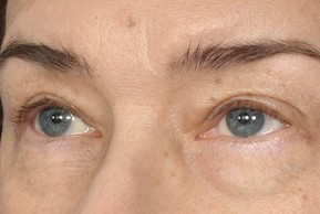 Before Photo - Eyelid Surgery - Case #18986 - Eye Area Rejuvenation - Oblique View