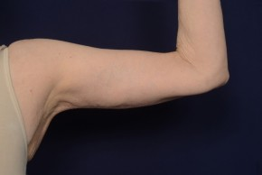 After Photo - Upper Arm Lift - Case #18989 - Frontal View