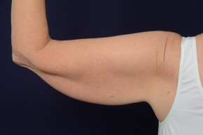 Before Photo - Upper Arm Lift - Case #18989 - Posterior View