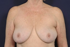 Before Photo - Breast Lift - Case #18990 - Augmentation Mastopexy - Frontal View