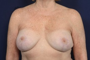 After Photo - Breast Lift - Case #18990 - Augmentation Mastopexy - Frontal View