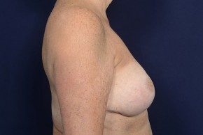 After Photo - Breast Lift - Case #18990 - Augmentation Mastopexy - Lateral View