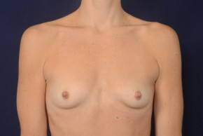 Before Photo - Breast Augmentation - Case #18997 - Frontal View