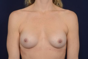After Photo - Breast Augmentation - Case #18997 - Frontal View