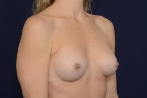 After Photo - Breast Augmentation - Case #18997 - Oblique View
