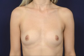 Before Photo - Breast Augmentation - Case #19004 - Frontal View