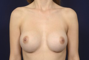 After Photo - Breast Augmentation - Case #19004 - Frontal View