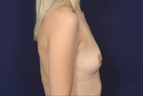 Before Photo - Breast Augmentation - Case #19004 - Lateral View