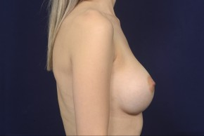 After Photo - Breast Augmentation - Case #19004 - Lateral View