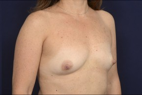 Before Photo - Breast Augmentation - Case #19006 - Oblique View