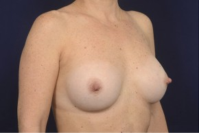 After Photo - Breast Augmentation - Case #19006 - Oblique View