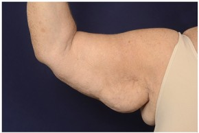 Before Photo - Upper Arm Lift - Case #19007 - Brachioplasty - Frontal View