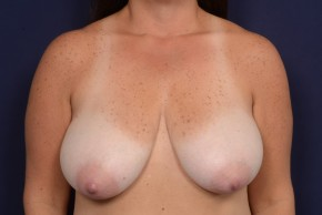 Before Photo - Breast Reduction - Case #19008 - Frontal View