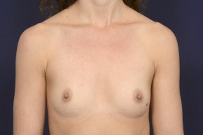 Before Photo - Breast Augmentation - Case #19010 - Frontal View