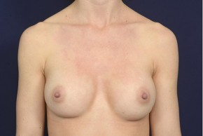 After Photo - Breast Augmentation - Case #19010 - Frontal View