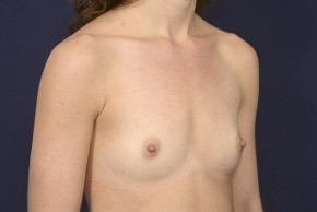 Before Photo - Breast Augmentation - Case #19010 - Oblique View