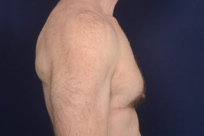 After Photo - Gynecomastia - Case #19175 - Lateral View