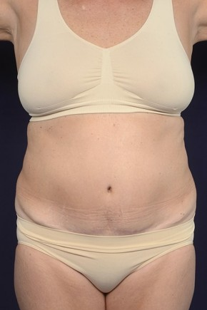 Before Photo - Liposuction - Case #20828 - Trunk Liposuction - Frontal View