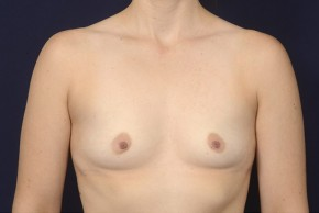 Before Photo - Breast Augmentation - Case #20839 - Frontal View